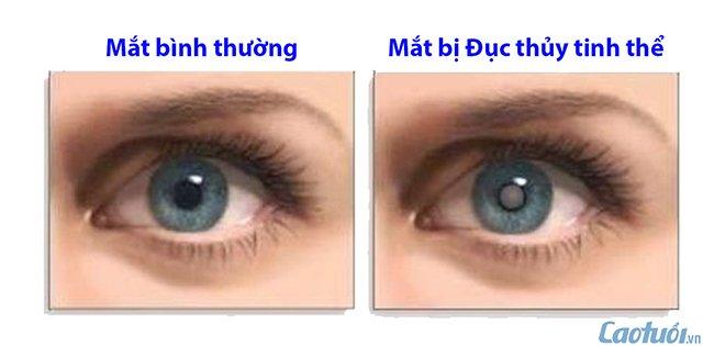 Mắt bị bệnh đục thủy tinh thể (Cườm khô)