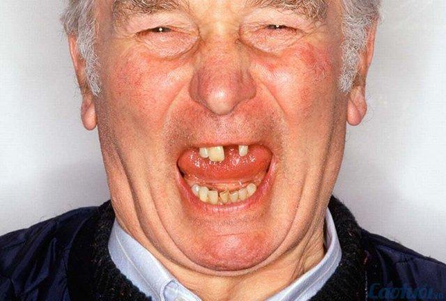 Những bệnh răng miệng thường gặp ở người cao tuổi - Cao tuổi | Chuyên trang Người cao tuổi